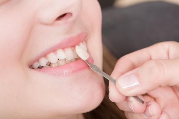 ضرورت کشیدن دندان عقل