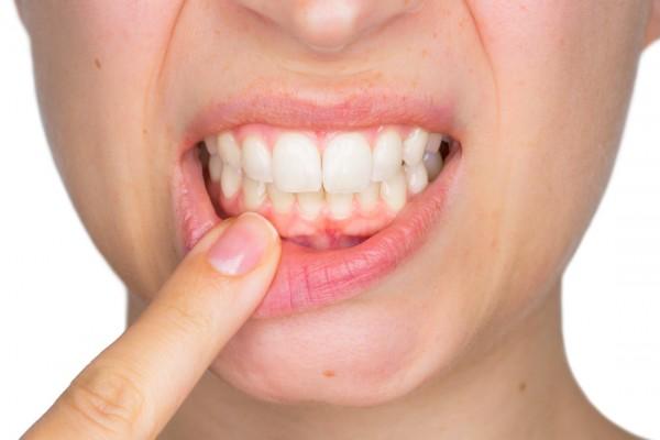 سلامت دهان و دندان در دوران حاملگی و بارداری