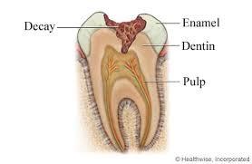 کشیدن دندان