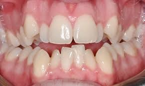 مشکلات شایع دهان و دندان