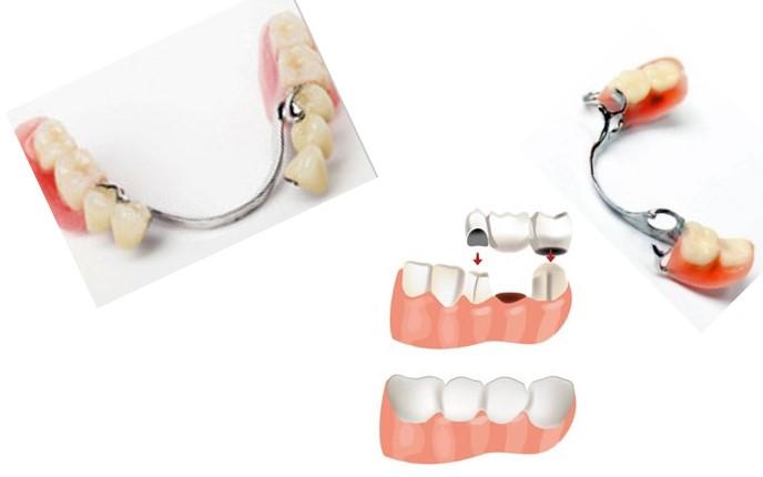شکستن دندان مصنوعی