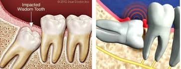 نهفتگی دندان چیست؟