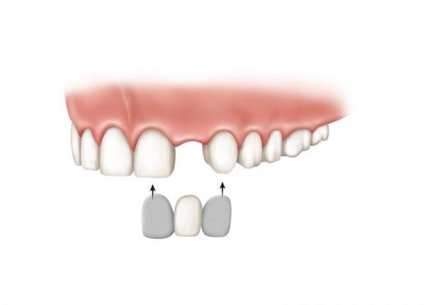 روش های جایگزین دندان های از دست رفته