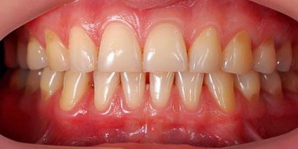 رعایت بهداشت دندان و لثه