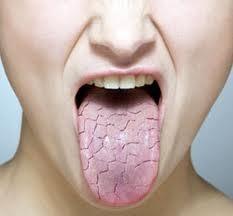 پیشگیری و درمان مشکلات شایع دهان و دندان
