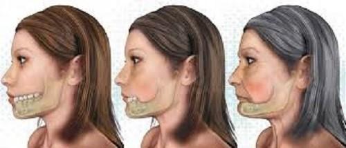 پوکی استخوان و بیماریهای دهان و دندان