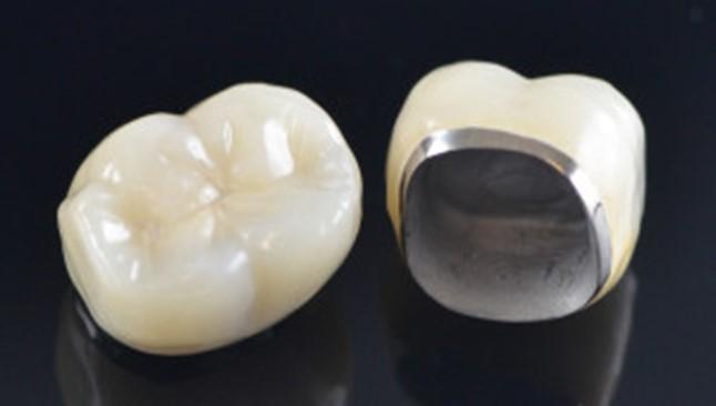 مزایا و معایب انواع روکش دندان