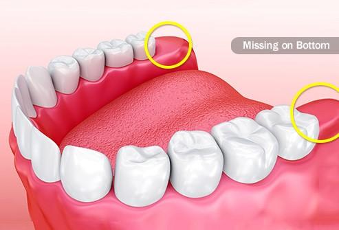 درنیامدن دندان عقل