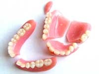 دندان مصنوعی چقدر عمر میکند