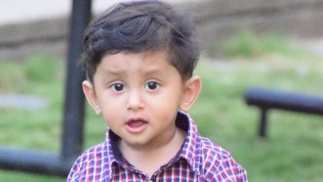 اختلالات رشد دندان در کودکان