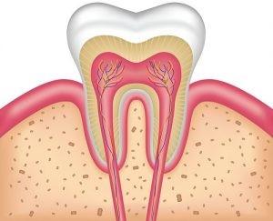 روش های کاهش درد پس از درمان ریشه