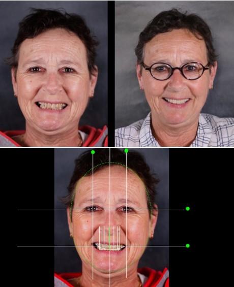 طرح لبخند دیجیتالی