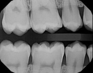 عکسبرداری و رادیوگرافی در دندانپزشکی